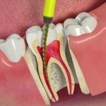 Endodontia – Tratamento de Canal