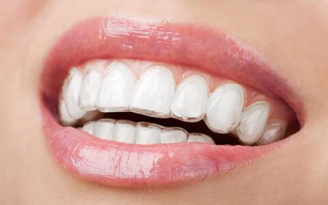 Ortodontia com alinhadores invisíveis: INVISALIGN